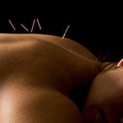 Acupuncture Effects